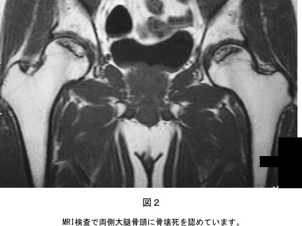 難病 股関節